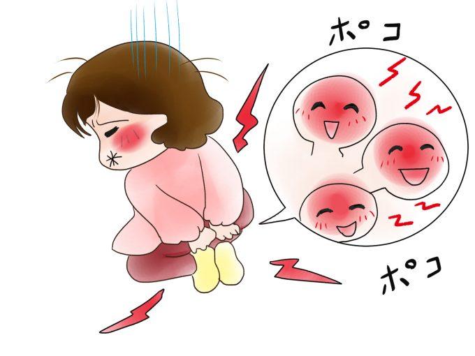 【出産後に痔が悪化】少しでも痔の痛みを和らげる5つの方法