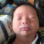【新生児の乳児脂漏性湿疹】原因と症状によって違う3つの対処方法